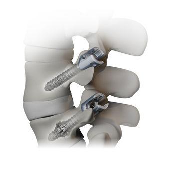 Monoaxial pedicle screw - OSSEOSCREW® - Alphatec Spine