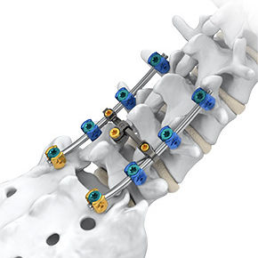 Thoraco-lumbo-sacral spinal osteosynthesis unit - Arsenal™ - Alphatec Spine - posterior / adult