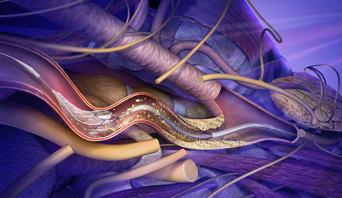 Prevent the Occurrence of Stroke Disorder Through Carotid Artery Stenting