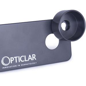 dermatoscope smartphone adapter