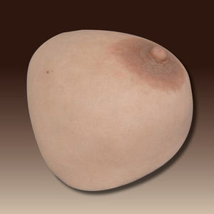 breast cosmetic prosthesis