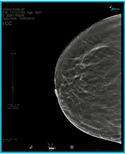 mammography software module