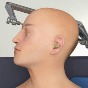 neurosurgery iOS application