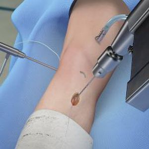 knee surgery iOS application