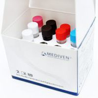 tuberculosis test kit / Mycobacterium tuberculosis / for mycobacteria / blood