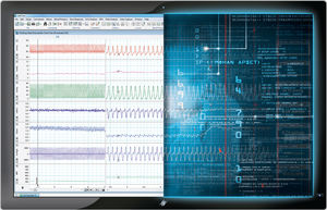 data management software / for electrophysiology / for research