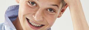 metal orthodontic bracket / mini-twin
