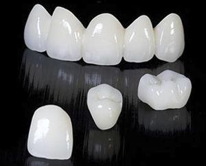 zirconia dental bridge