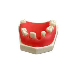 mandible model