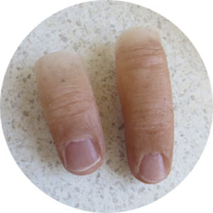 finger cosmetic prosthesis / adult