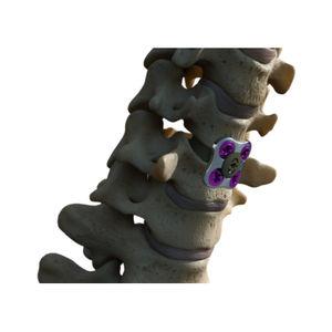 cervical arthrodesis plate
