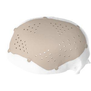 custom-made cranial implant