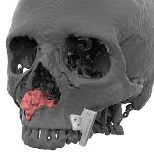 maxillofacial reconstruction resection guide
