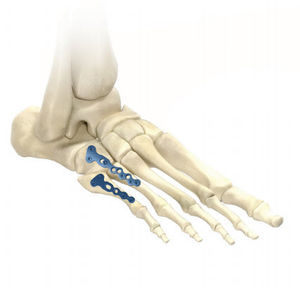 tarso-metatarsal joint arthrodesis plate
