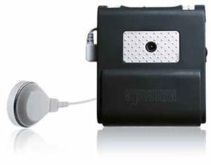 behind-the-ear processor bone conduction implant