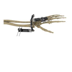 wrist external fixation system