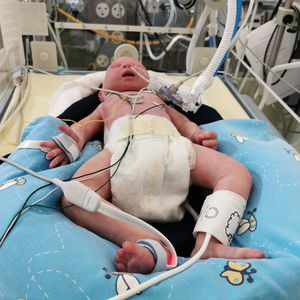 baby lung simulator