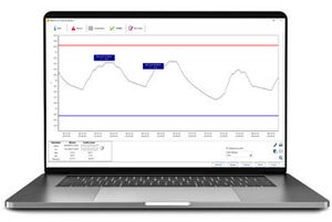 data tracking software
