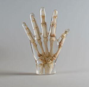 radiography test phantom / hand