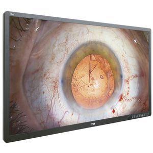 surgical display