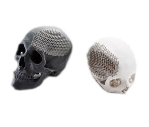 custom-made cranial implant
