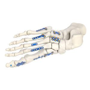 tarsal bone compression plate