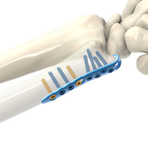 ulna compression plate