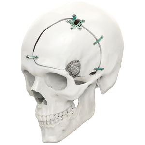 non-absorbable cranial fixation system