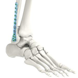 fibula compression plate / distal / lateral