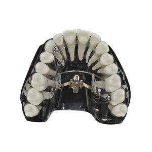 tapered dental implant
