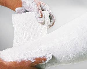 plaster casting tape