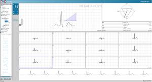 ECG software