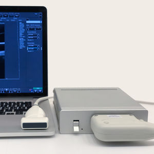 on-platform, tabletop ultrasound system / for multipurpose ultrasound imaging / color doppler / B/W