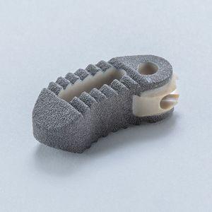 lumbar interbody fusion cage / transforaminal