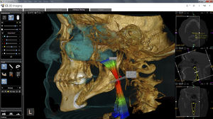 dental imaging software module