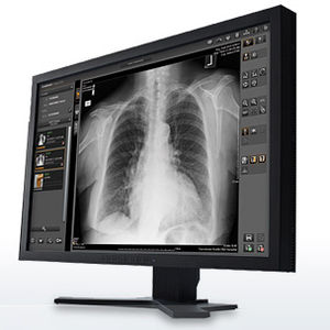 medical imaging software / analysis / management / visualization