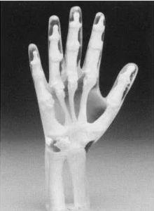 radiography test phantom