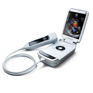 hand-held ultrasound system / for multipurpose ultrasound imaging / B/W / color doppler