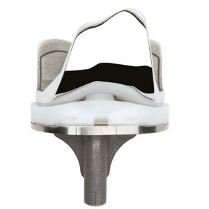 three-compartment knee prosthesis