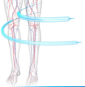 Cordis Balloon catheters - All the products on MedicalExpo