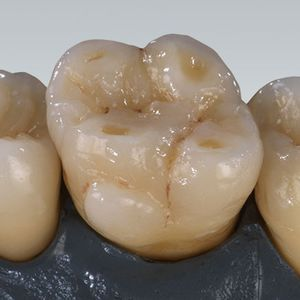 zirconia dental material