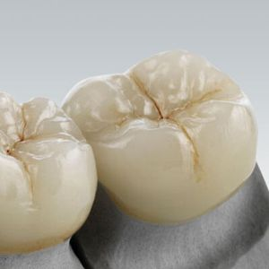 glass ceramic dental material