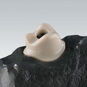 polymer acrylic dental material