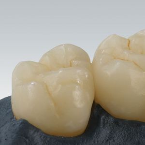 hybrid-ceramic dental material