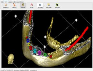 3D viewing software / planning / surgical / for dental imaging