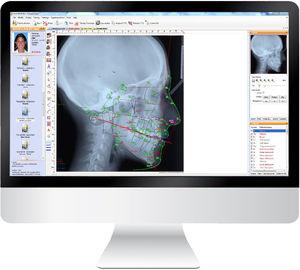 cephalometric analysis software / management / diagnostic / for orthodontics