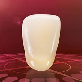 composite dental prosthesis