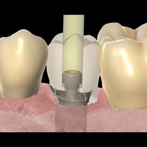 dental laboratory software