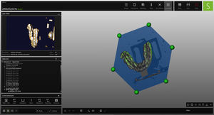 scan software module / CAD / dental laboratory