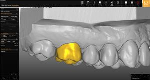 mock-up software module / modeling / dental laboratory